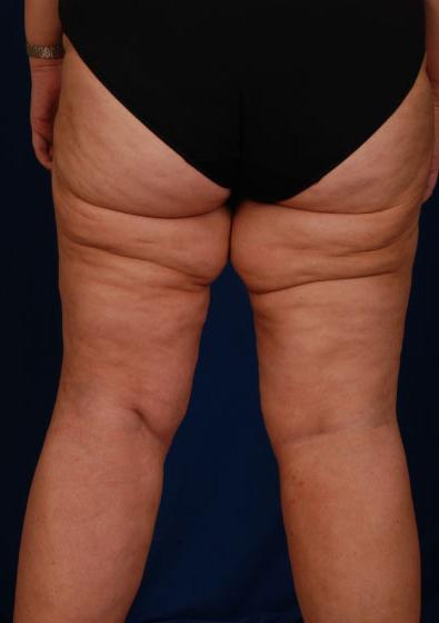 VASER Hi Def Liposuction Before & After Patient #3156