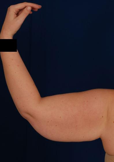 VASER Hi Def Liposuction Before & After Patient #3171