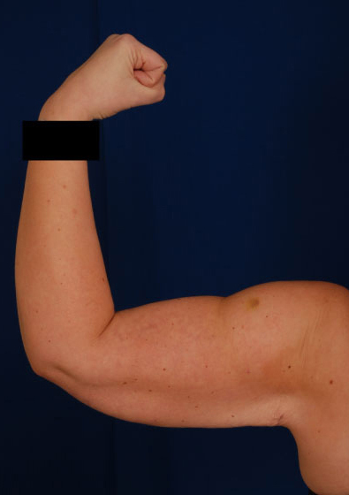 Arms Liposuction Before & After Patient #3171