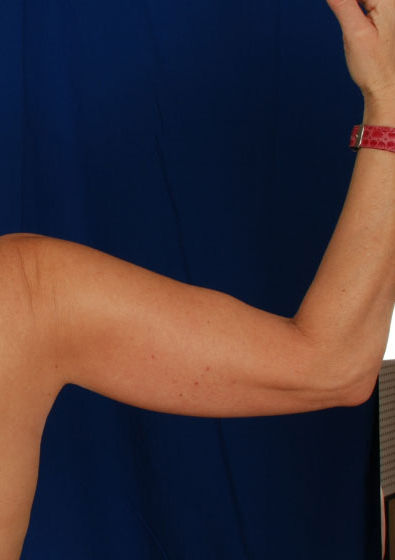 Arms Liposuction Before & After Patient #3166