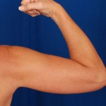 Arms Liposuction Before & After Patient #3220
