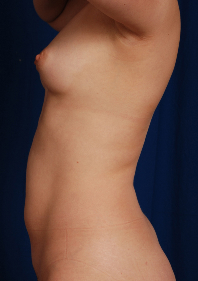 VASER Hi Def Liposuction Before & After Patient #3174