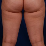 VASER Hi Def Liposuction Before & After Patient #3208