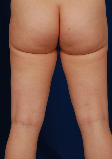 Legs Liposuction Before & After Patient #3208