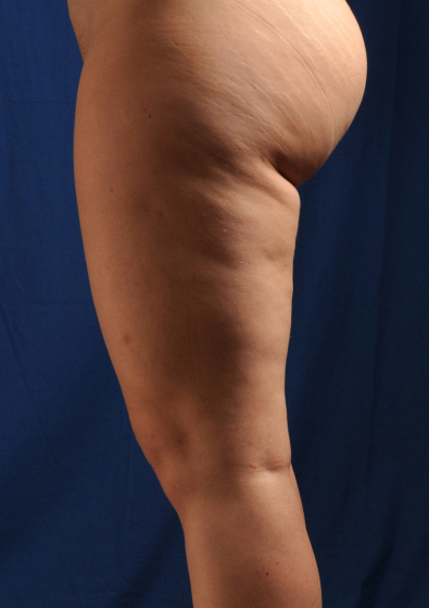 Legs Liposuction Before & After Patient #3211