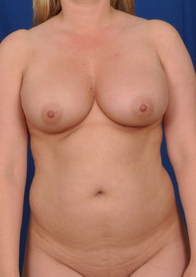 VASER Hi Def Liposuction Before & After Patient #3183
