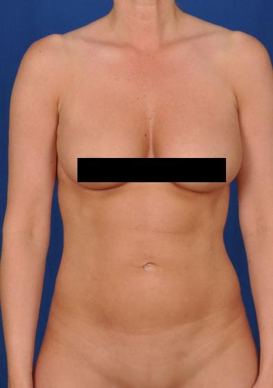 VASER Hi Def Liposuction Before & After Patient #3183