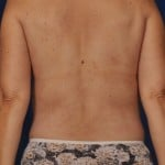 VASER Hi Def Liposuction Before & After Patient #3194