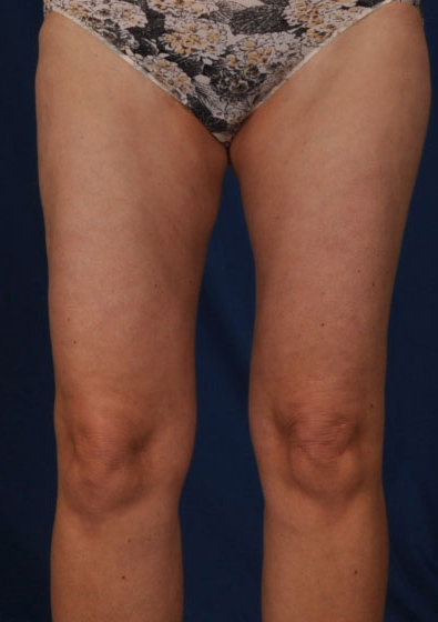 Legs Liposuction Before & After Patient #3194