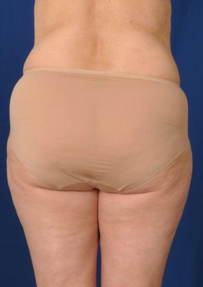 VASER Hi Def Liposuction Before & After Patient #3194
