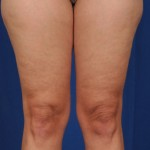 Legs Liposuction Before & After Patient #3203
