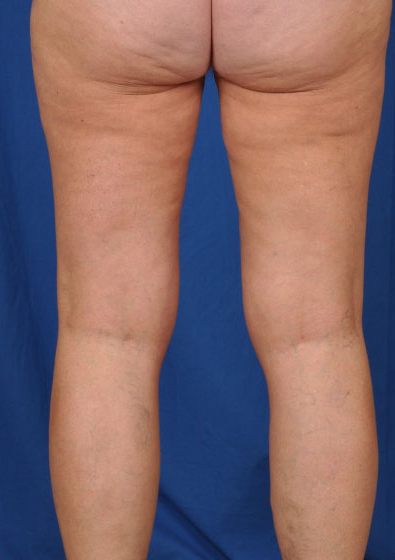 Legs Liposuction Before & After Patient #3214