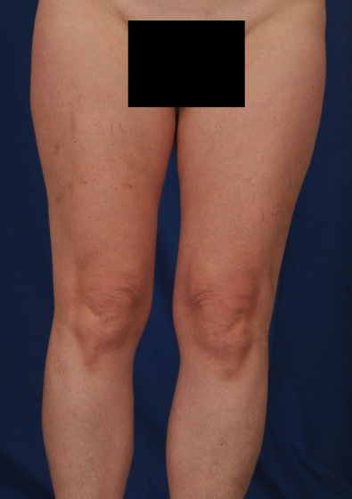 VASER Hi Def Liposuction Before & After Patient #3217