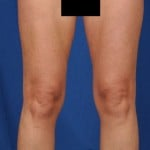 Legs Liposuction Before & After Patient #3217