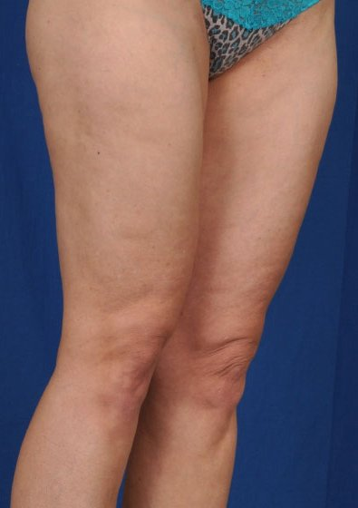 VASER Hi Def Liposuction Before & After Patient #3203