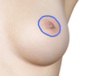 crescent breast lift
