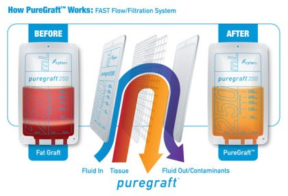 puregraft-process