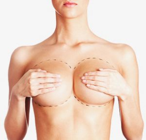 colorado-breast-implant-removal
