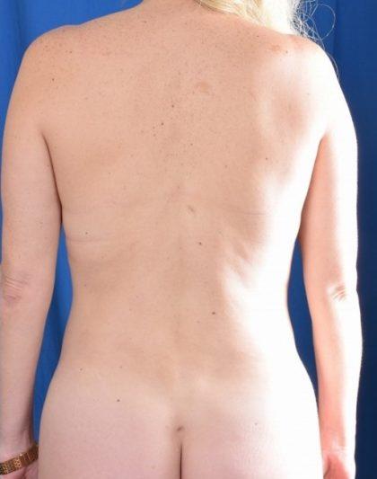 VASER Hi Def Liposuction Before & After Patient #4389