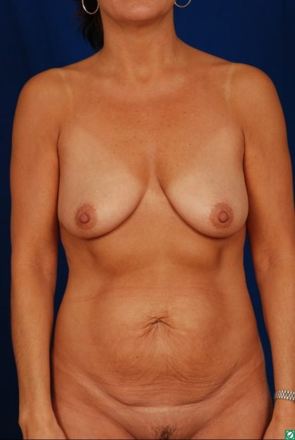 Tummy Tuck Before & After Patient #4401