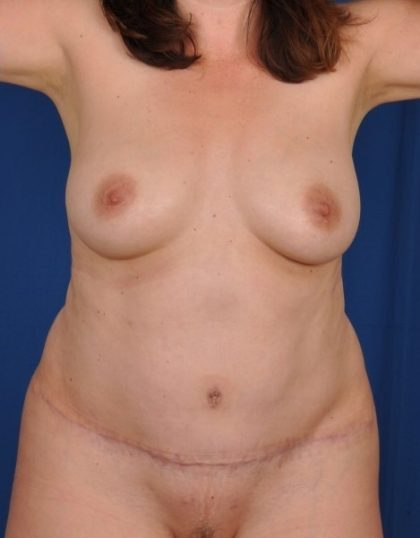 Tummy Tuck Before & After Patient #4414