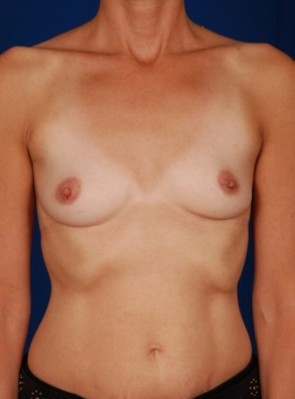 Breast Augmentation Before & After Patient #4422