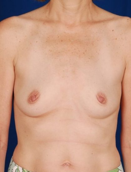 Breast Augmentation Before & After Patient #4431