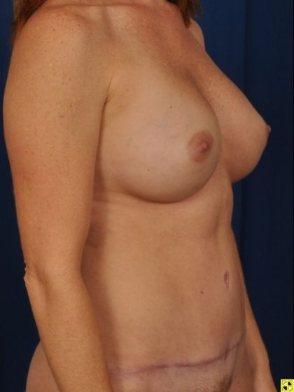 Tummy Tuck Before & After Patient #4440