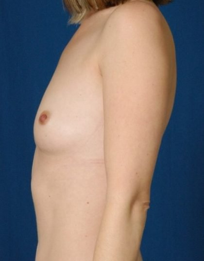 Breast Augmentation Before & After Patient #4468