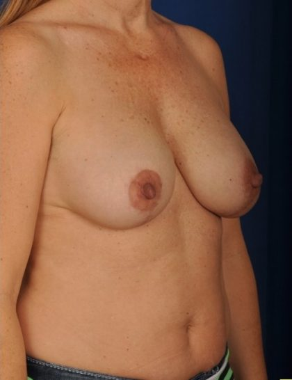 Breast Lift Before & After Patient #4477
