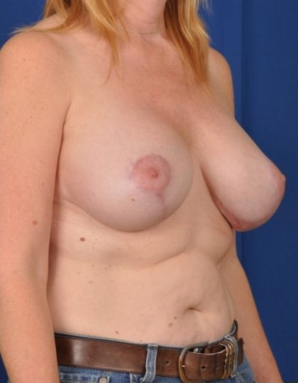 Breast Lift Before & After Patient #4497