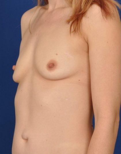 Breast Augmentation Before & After Patient #4508