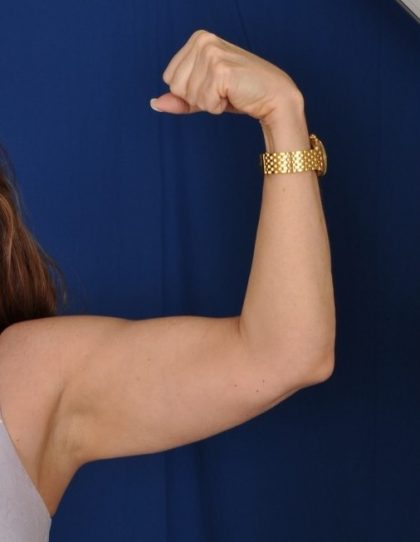 Arms Liposuction Before & After Patient #4517
