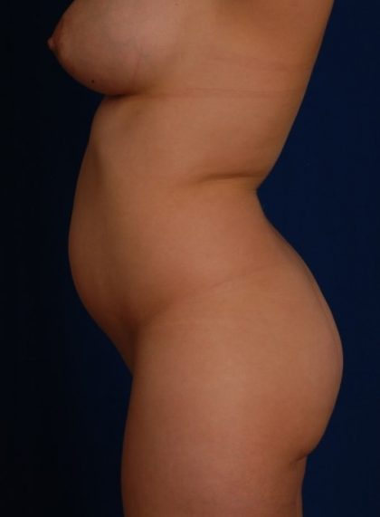 Fat Transfer Before & After Patient #4384