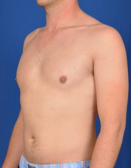 Gynecomastia Before & After Patient #4526