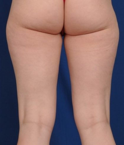 Legs Liposuction Before & After Patient #4533