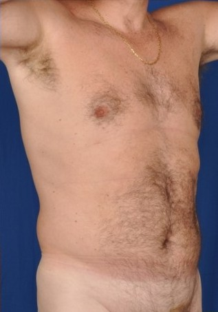 VASER Hi Def Liposuction Before & After Patient #4538