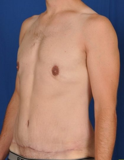 Gynecomastia Before & After Patient #4553