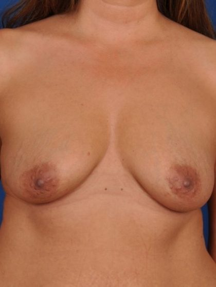 Breast Augmentation Before & After Patient #4562