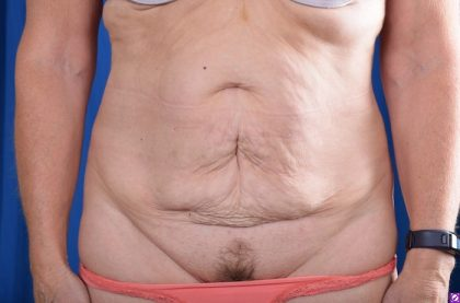 Tummy Tuck Before & After Patient #4590