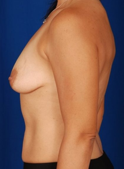Breast Augmentation Before & After Patient #4375