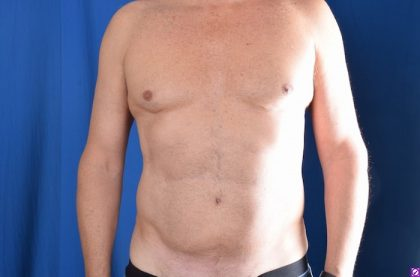 VASER Hi Def Liposuction Before & After Patient #4593
