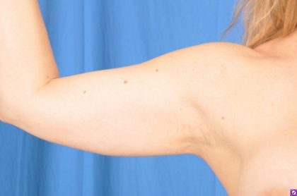 Arms Liposuction Before & After Patient #4603