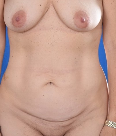Tummy Tuck Before & After Patient #4608