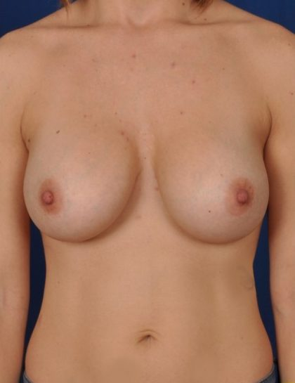 Breast Augmentation Before & After Patient #4488