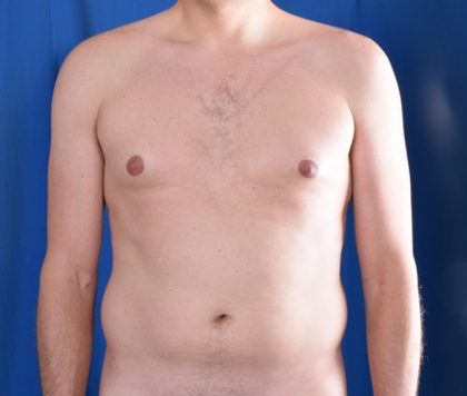 Tummy Tuck Before & After Patient #4636