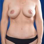 Tummy Tuck Before & After Patient #4650
