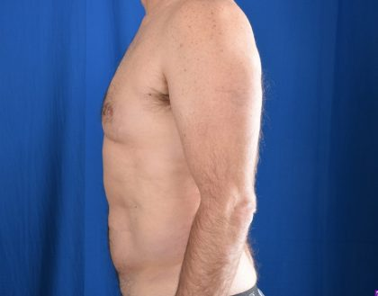 Gynecomastia Before & After Patient #4645