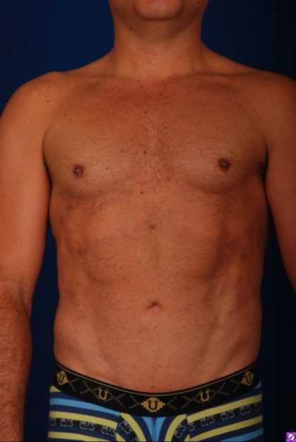 VASER Hi Def Liposuction Before & After Patient #4627