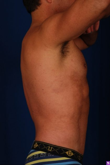 VASER Hi Def Liposuction Before & After Patient #4627
